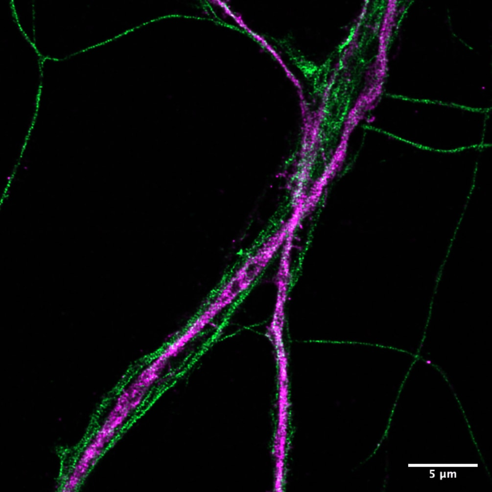 Neurons B II - IV spectrin Olympus_Christophe Letterier
