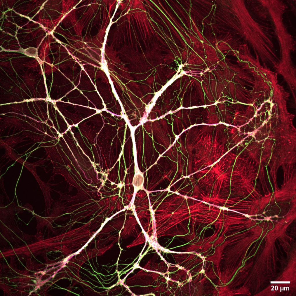 RCM 2 Neurons 40x