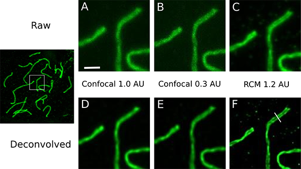 Advantages of re-scan confocal microscopy